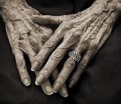 """Hands of 87 years"""